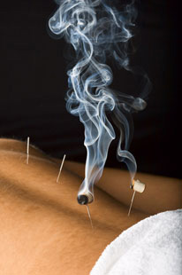 bournemouth-acupuncture