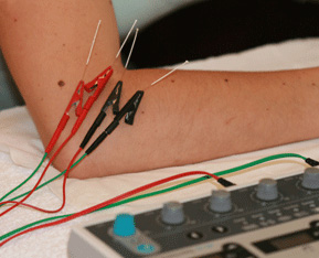 bournemouth-electro-acupuncture